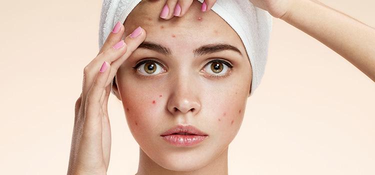 Trattamento acne Padova