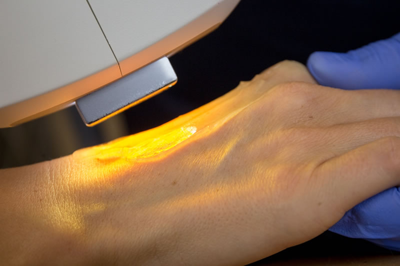 Rimozione laser delle macchie